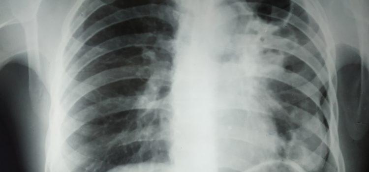 Около одной трети населения мира имеют латентный туберкулез. Своевременные обследования — лучший способ профилактики.